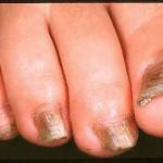 black toenails ruins your feet
