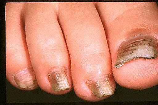black toenails ruins your feet