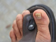 toe nail fungus on left foot wearing beach sandals