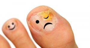 sad smiley on big toe with nail fungus from left foot