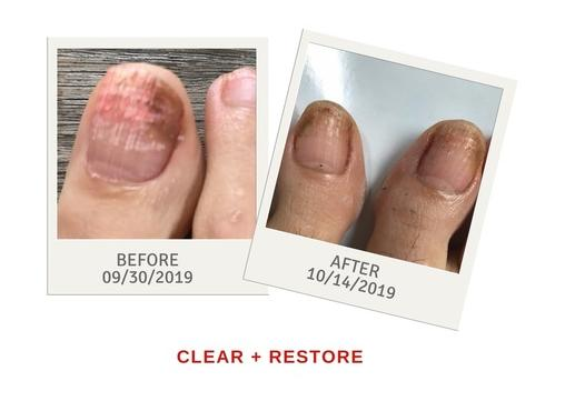 before and after laser treatment on toenail fungus